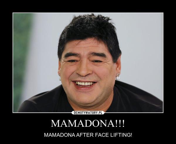 MAMADONA!!! – MAMADONA AFTER FACE LIFTING!