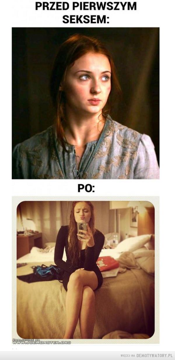 Przed i po –