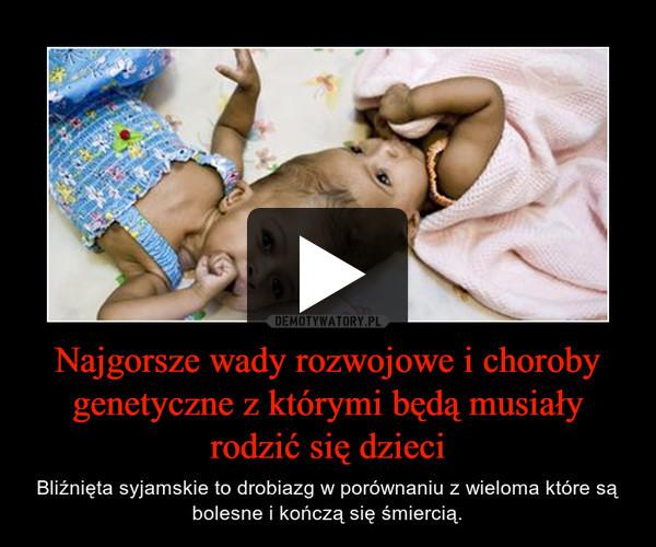 Najgorsze wady rozwojowe i choroby genetyczne z którymi będą musiały rodzić się dzieci – Bliźnięta syjamskie to drobiazg w porównaniu z wieloma które są bolesne i kończą się śmiercią.