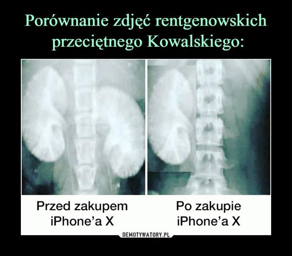 –  przed zakupem iPhone'a X po zakupie