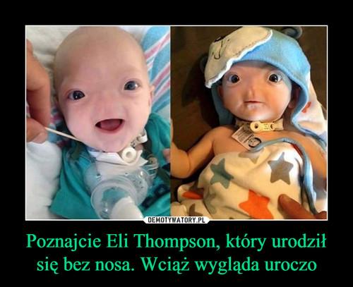 Poznajcie Eli Thompson, który urodził się bez nosa. Wciąż wygląda uroczo