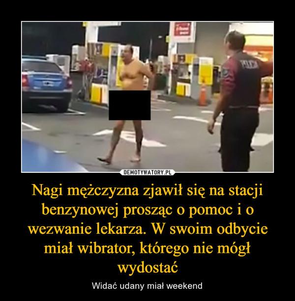 Nagi mężczyzna zjawił się na stacji benzynowej prosząc o pomoc i o wezwanie lekarza. W swoim odbycie miał wibrator, którego nie mógł wydostać – Widać udany miał weekend
