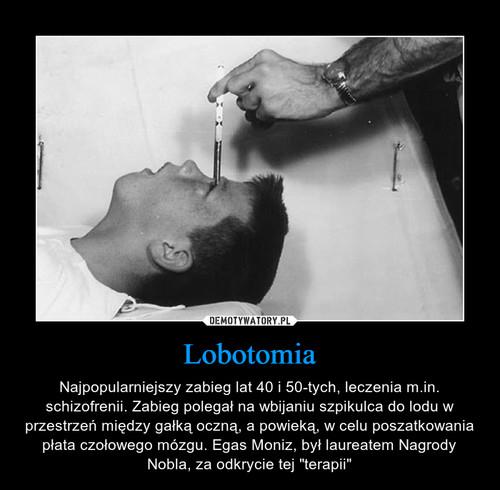 Lobotomia