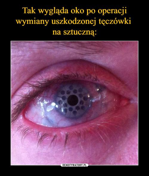 Tak wygląda oko po operacji wymiany uszkodzonej tęczówki  na sztuczną: