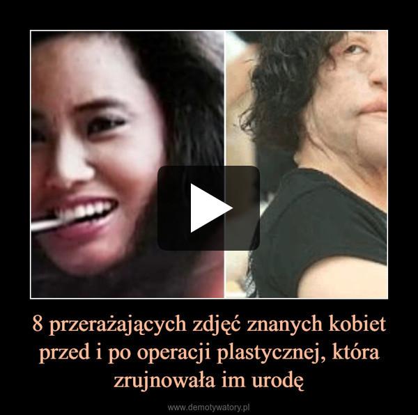 8 przerażających zdjęć znanych kobiet przed i po operacji plastycznej, która zrujnowała im urodę –