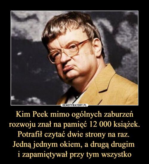 Kim Peek mimo ogólnych zaburzeń rozwoju znał na pamięć 12 000 książek. Potrafił czytać dwie strony na raz.  Jedną jednym okiem, a drugą drugim  i zapamiętywał przy tym wszystko