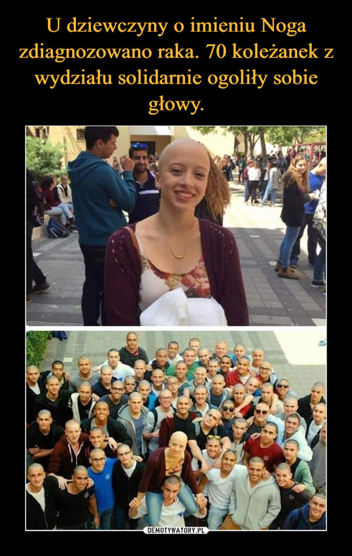 U dziewczyny o imieniu Noga zdiagnozowano raka. 70 koleżanek z wydziału solidarnie ogoliły sobie głowy.