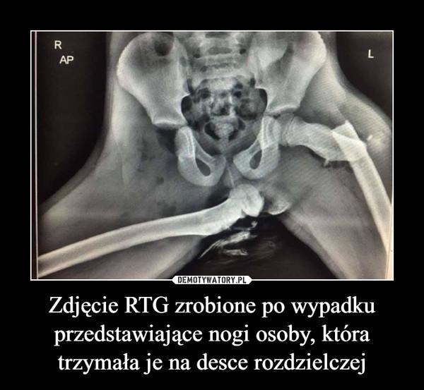 Zdjęcie RTG zrobione po wypadku przedstawiające nogi osoby, która trzymała je na desce rozdzielczej –
