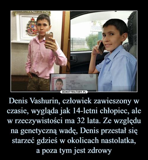 Denis Vashurin, człowiek zawieszony w czasie, wygląda jak 14-letni chłopiec, ale w rzeczywistości ma 32 lata. Ze względu na genetyczną wadę, Denis przestał się starzeć gdzieś w okolicach nastolatka, a poza tym jest zdrowy